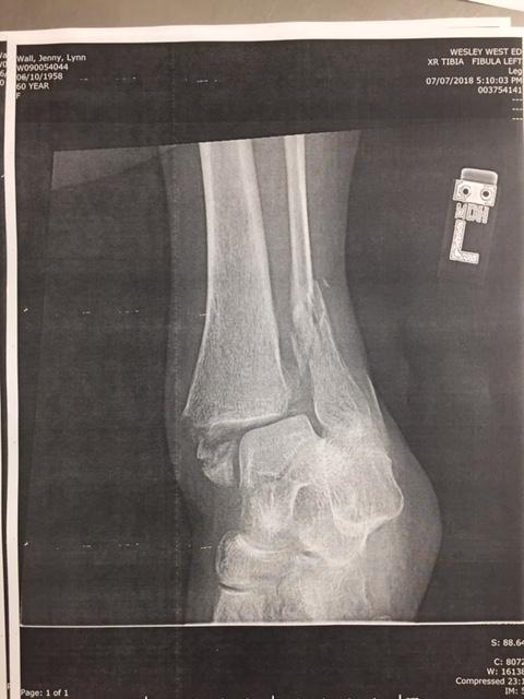 Xrays of broken bone